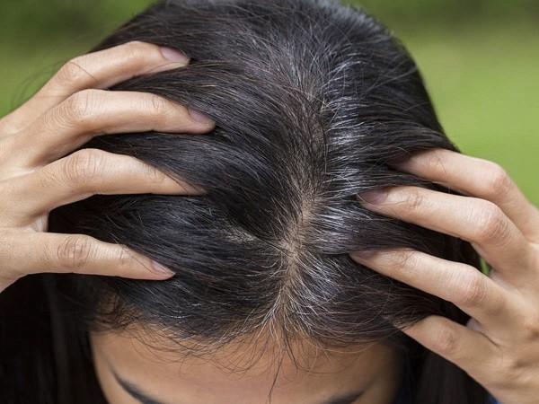 علت های سفیدی مو